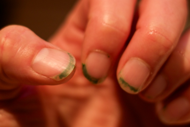 Kale Nails. The opposite of a french manicure.